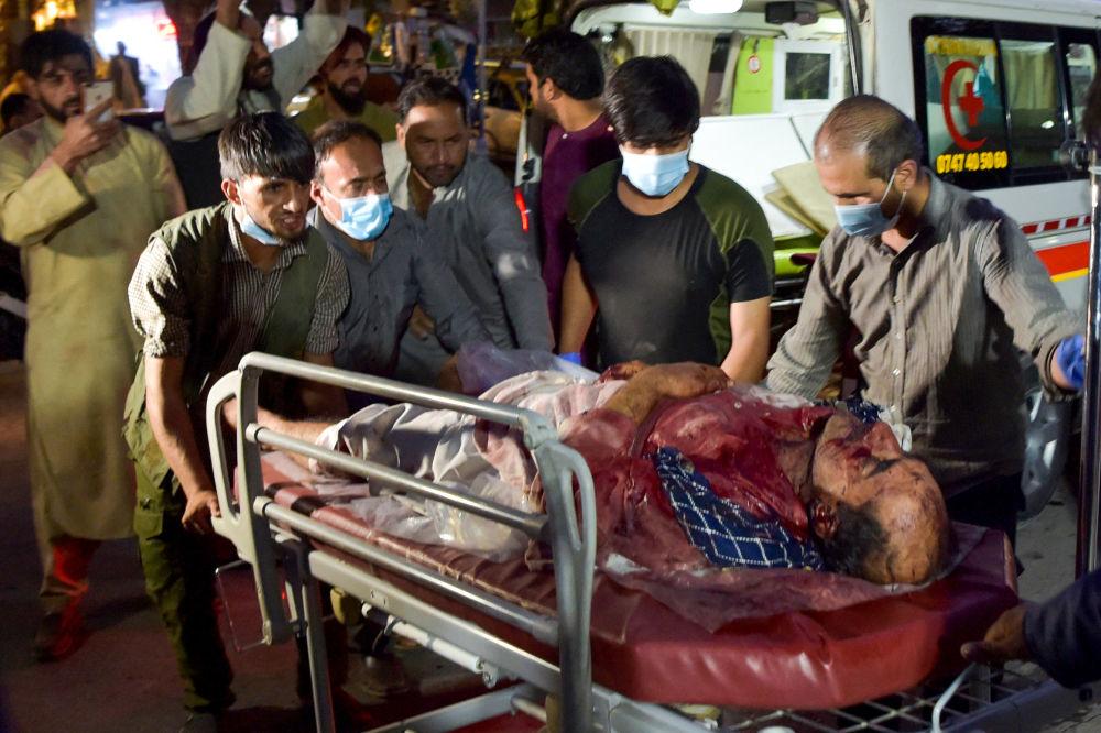 آسیب دیدگان انفجارات شدید در کابل