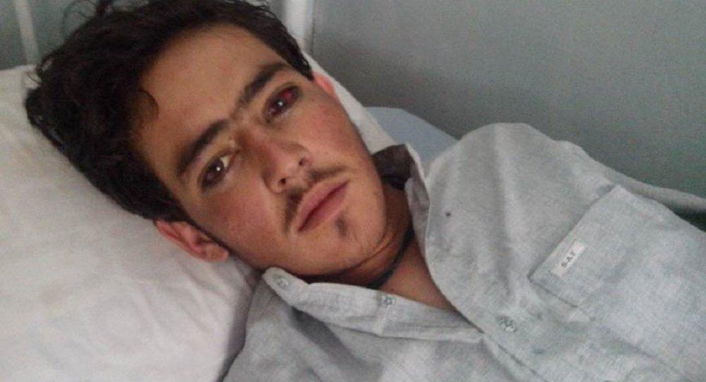 شناسایی ۱۶ بیمار مشکوک به تب کریمه کنگو در استان خراسان رضوی