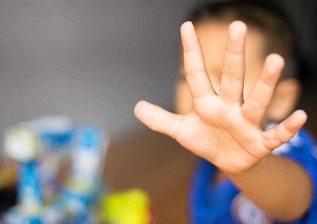 کودکی  که مغزش روی بینی است + عکس